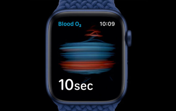 Apple Watch could acquire blood sugar monitoring features by 2022